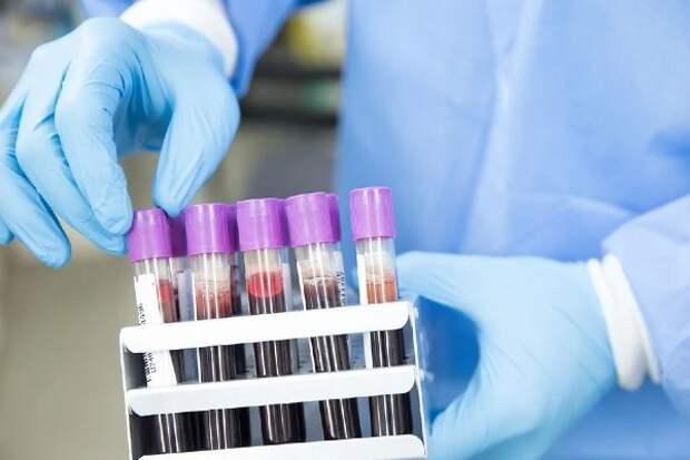 Бубонную чуму подтвердили у скотовода на севере Китая