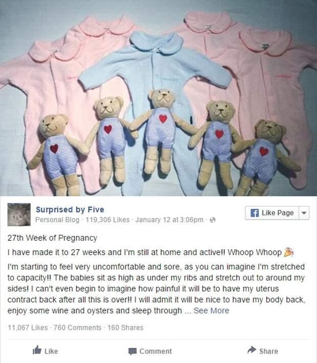 Недавно Ким сообщила, что это будут четыре девочки и один мальчик. беременность, близнецы, фотографии