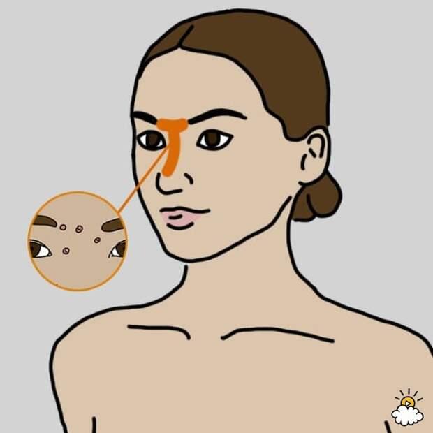 8 причин высыпаний на разных участках лица