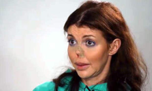 «Живот разрезан вдоль, лица нет»: Казьмина дала откровенное интервью о всех своих болезнях