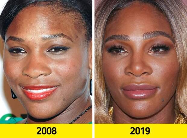 Как с годами меняются лица знаменитостей