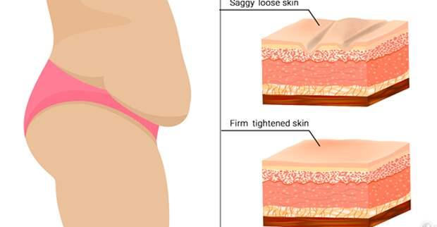 7 простых способов, которые помогут подтянуть провисшую кожу естественным способом