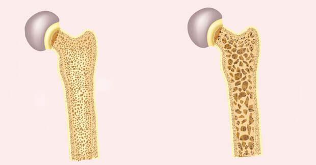 Остеопения: причины, риски, диагностика и способы укрепления костей