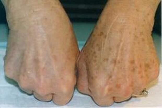 пигментация кожи рук