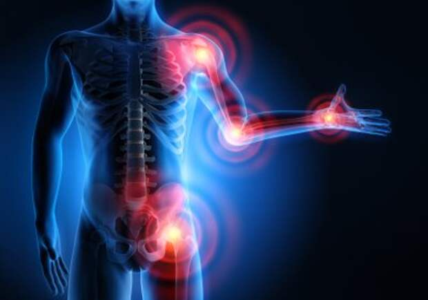 Воспалительные процессы в суставах причины народные средства