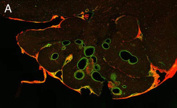 Бета-блокаторы в лечении сосудистых мальформаций ЦНС
