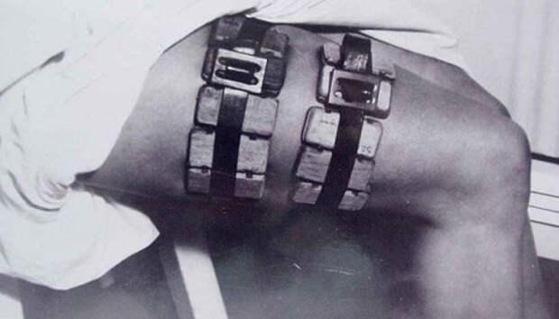 7 диких врачебных инструментов из прошлого, которые пробирают до дрожи