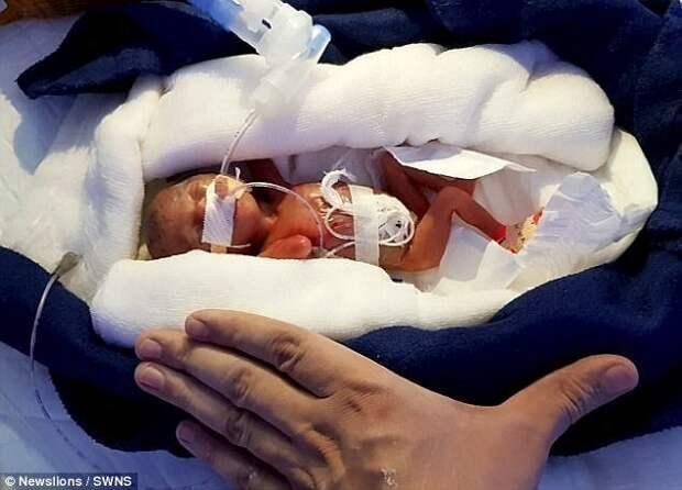 Когда девочка родилась, она не дышала, у нее была тончайшая кожа и недоразвитые органы. Шанс, что ребенок будет развиваться без повреждений мозга, составлял всего 0,5 процента. ynews, дети, медицина, новорожденные, новости, ребенок, спасение, фото
