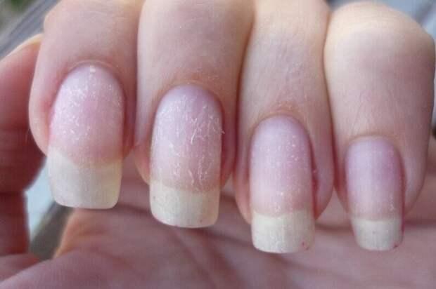 Быстрый способ восстановить ногти после гель лака