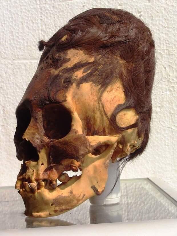 6. Удлиненный череп генетика, кровосмешение, мутация, последствие