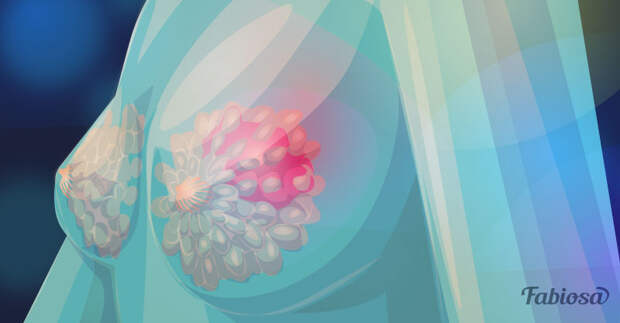 Рак молочной железы: как обезопасить себя от страшного диагноза?
