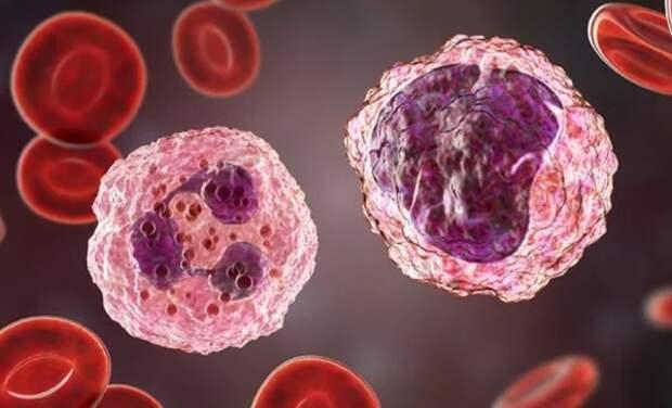 Симптомы лейкемии: на смертельную болезнь укажет ночной признак