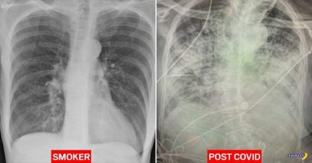 Коронавирус гробит лёгкие сильнее сигарет