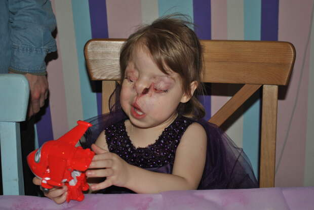 Лиза открывает глаза!
