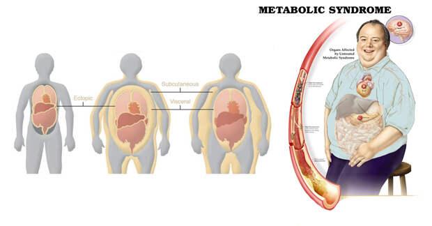 Что такое метаболический синдром: 6 признаков и факторы риска