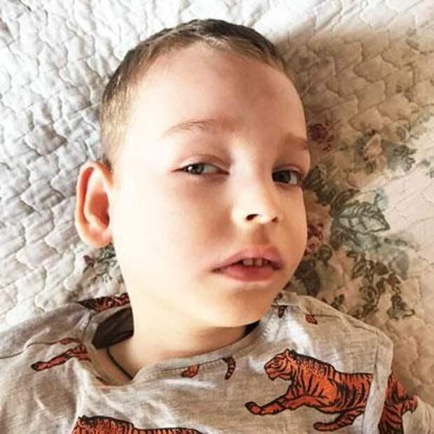 Наум Белов, 4 года, синдром Миллера – Дикера (порок развития головного мозга), структурная фокальная эпилепсия, требуются лекарства, 83932₽