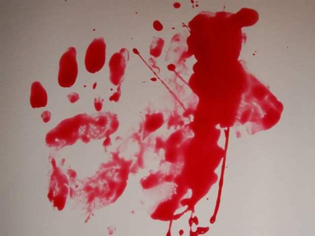 В больнице под Ростовом пациента убили шариковой ручкой