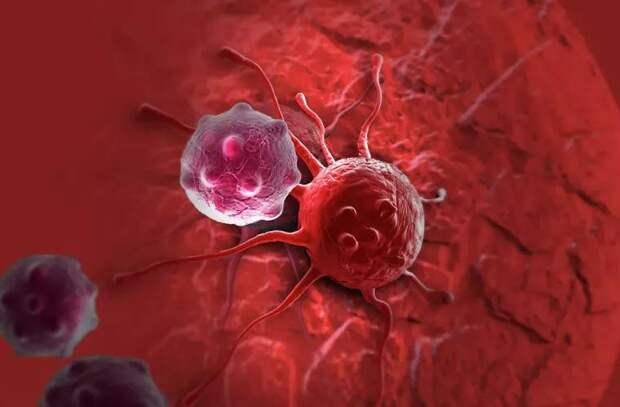 Назван неочевидный способ выявить рак крови на ранней стадии