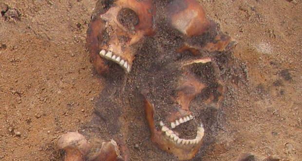 ВЛитве нашли останки женщины изСредневековья стропическим сифилисом