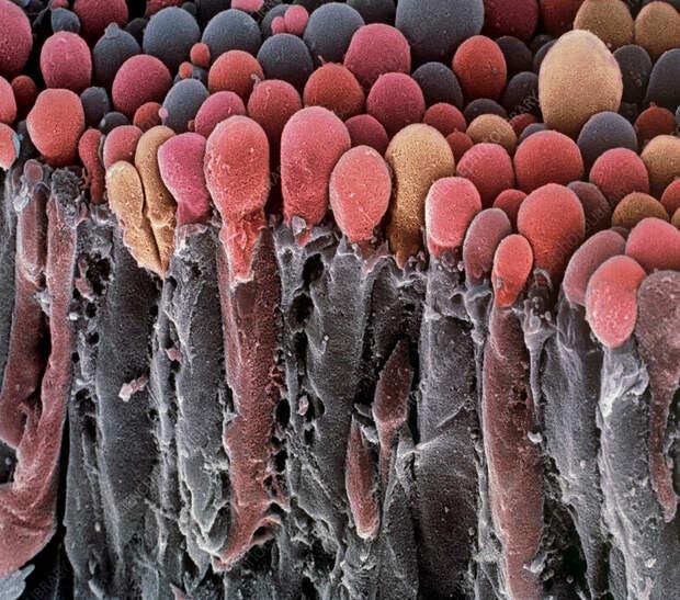 https://media.sciencephoto.com/image/p3300321/800wm/P3300321-Choroid_plexus_secretory_cells,_SEM.jpg