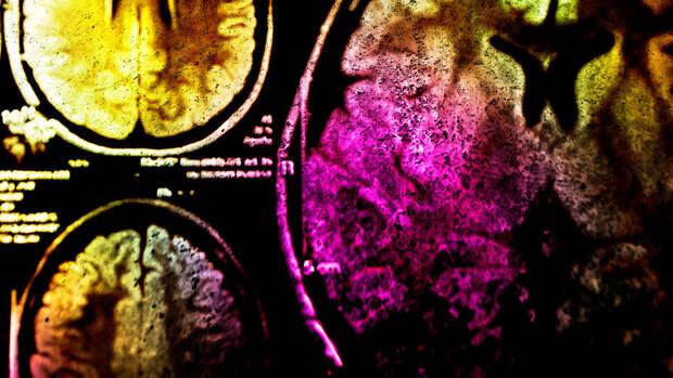 Ученые создали нейропротез, трансформирующий мысли в печатный текст
