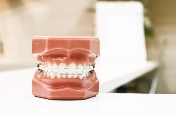 Почему вам нужны брекеты, даже если вы думаете, что с вашими зубами все в порядке