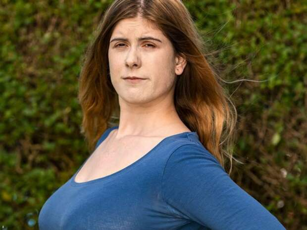 Грудь десятого размера испортила жизнь 21-летней девушке