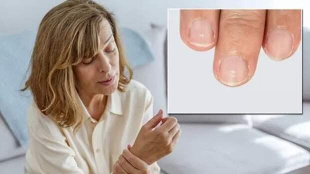 Симптомом каких заболеваний являются белые пятна на ногтях, рассказали врачи